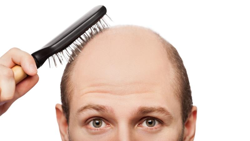 Burun estetiği ve Saç ekimi  ile estetik görünümler