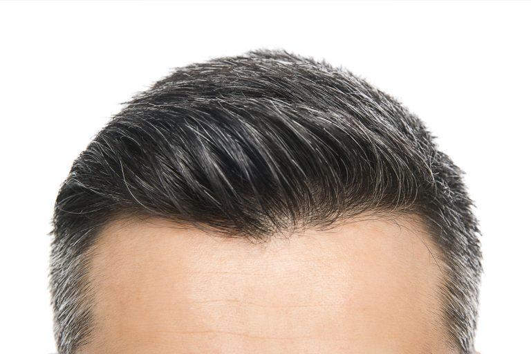Fue Saç Ekimi Ve Burun Estetiğinin Tedavi Sağladığı Alanlar Nelerdir?