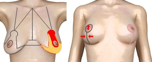 Göğüs Estetiği ve Dikleştirme Uygulamaları