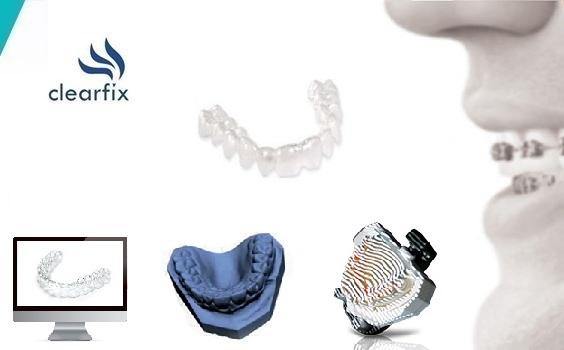 Ortodonti Tedavisinde Devrim