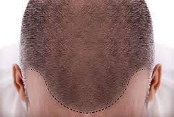 Saç Problemleri İçin En Kaliteli Çözüm Merkezi