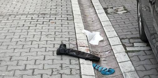 Sevgilisini sokak ortasında vurdu