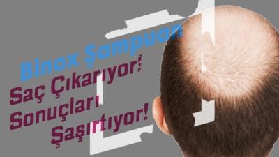 Binox Saç Çıkaran Şampuan ve Serum Ne İşe Yarar?
