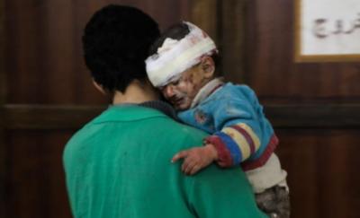 Suriye'de 59 çocuk öldürüldü
