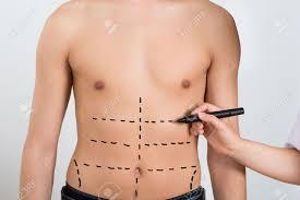 Vücut Hatlarını Düzeltmede Üç Uygulamaya Başvuruluyor